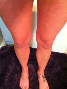 Red legs after icy bath,